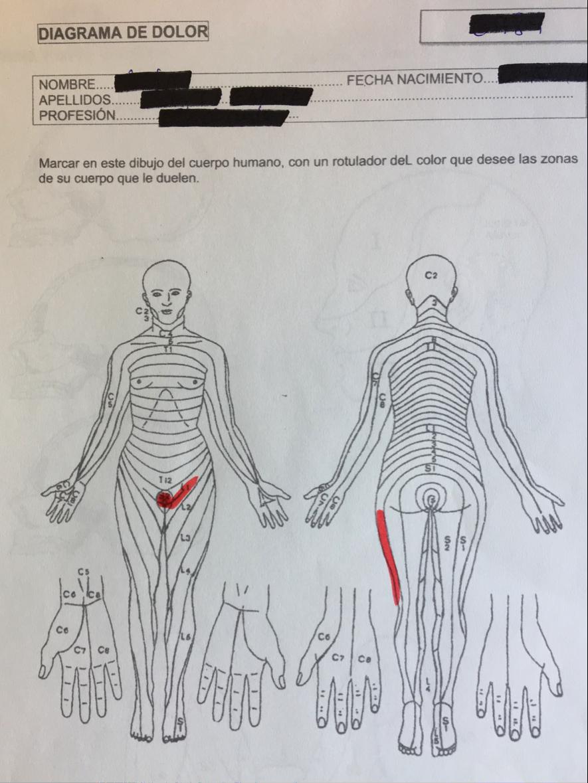 diagrama del dolor - Fundación Internacional del Dolor