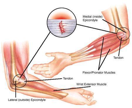 codo de tenista o epicondilitis