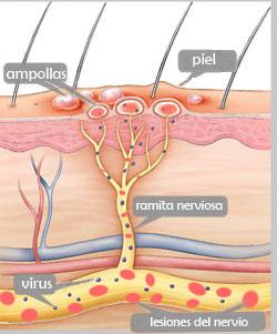 lesiones del nervio creadas por el virus de la Varicela y las ampollas que produce en la piel