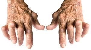 ¿Que es una artritis?