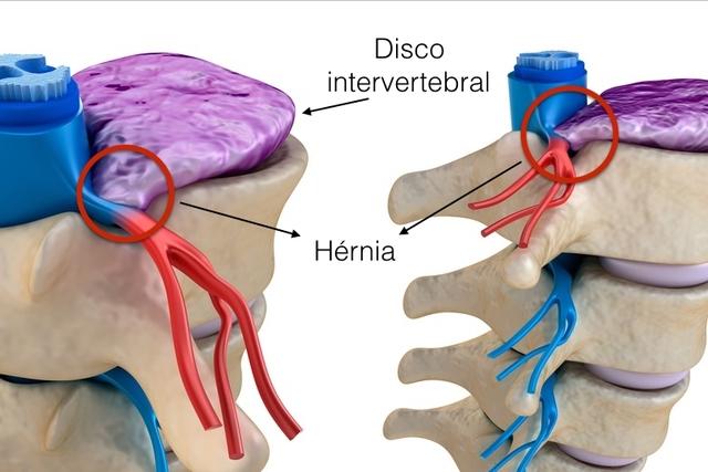 ¿Qué es una hernia de discal?