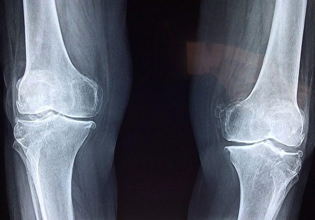 ¿Qué diferencia hay entre artrosis y artritis?