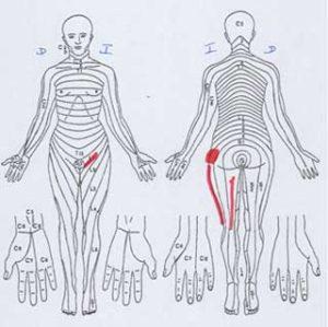 descripción de dolor de cadera
