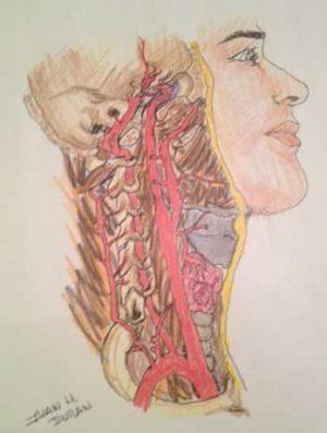 vertigo o Sindrome de Meniere