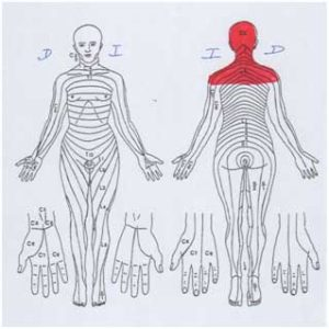 tensión muscular en hombros, cuello y cabeza