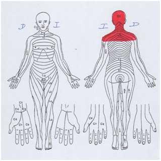 tension muscular en cabeza y cuello