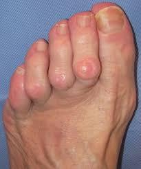 dedos en martillo del pie