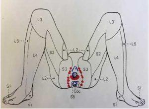 descripción del dolor en la vulvodinia