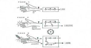 el dolor fase 3 es el dolor neuropático