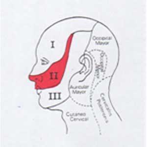 Neuralgia en segunda rama del Trigemino