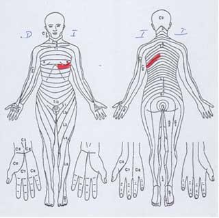 descripción de un dolor por Herpes Zoster