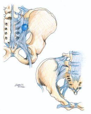inflamación de ligamentos del sacro