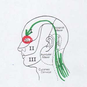 descripción del paso de cefalea tensional a neuropática