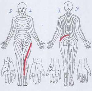 descripción de una radiculopatía L4 izq.