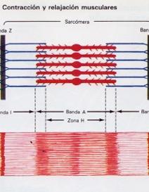 fibras musculares en relajación, separadas, Dolor por contracturas, tendinitis o roturas fibrilares