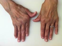 artritis seropositivas, con dedos en ráfaga