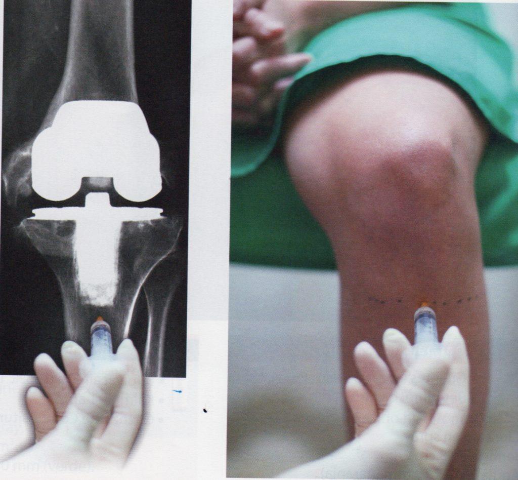 prótesis de rodilla inestable y su tratamiento
