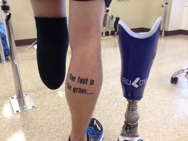 muñón, tras la amputación de pie y parte de la pierna izquierda